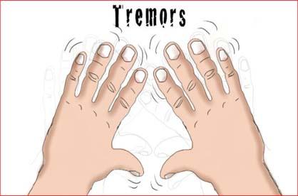 penyakit tremor